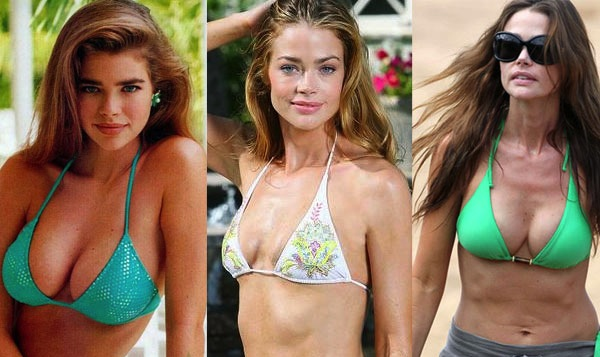 best celebrity boob jobs, denise richards