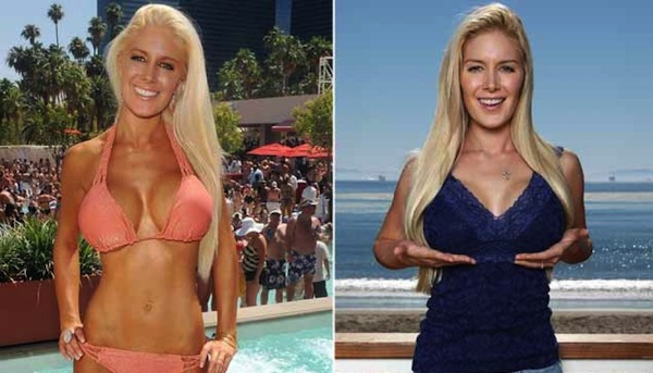 best celebrity boob jobs, heidi montag