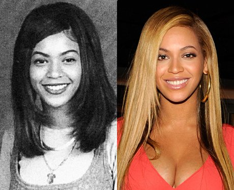 Before And After Fame 22 Startling Celebrity Photos